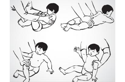 Phục hồi chức năng bàn chân khoèo bẩm sinh