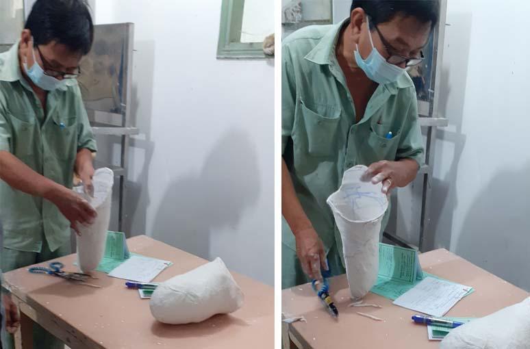 Caritas Sài Gòn: Hỗ trợ lắp chân giả cho Người khuyết tật